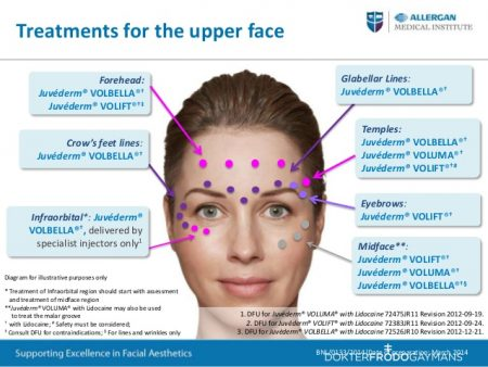 Juvederm-zones-injections